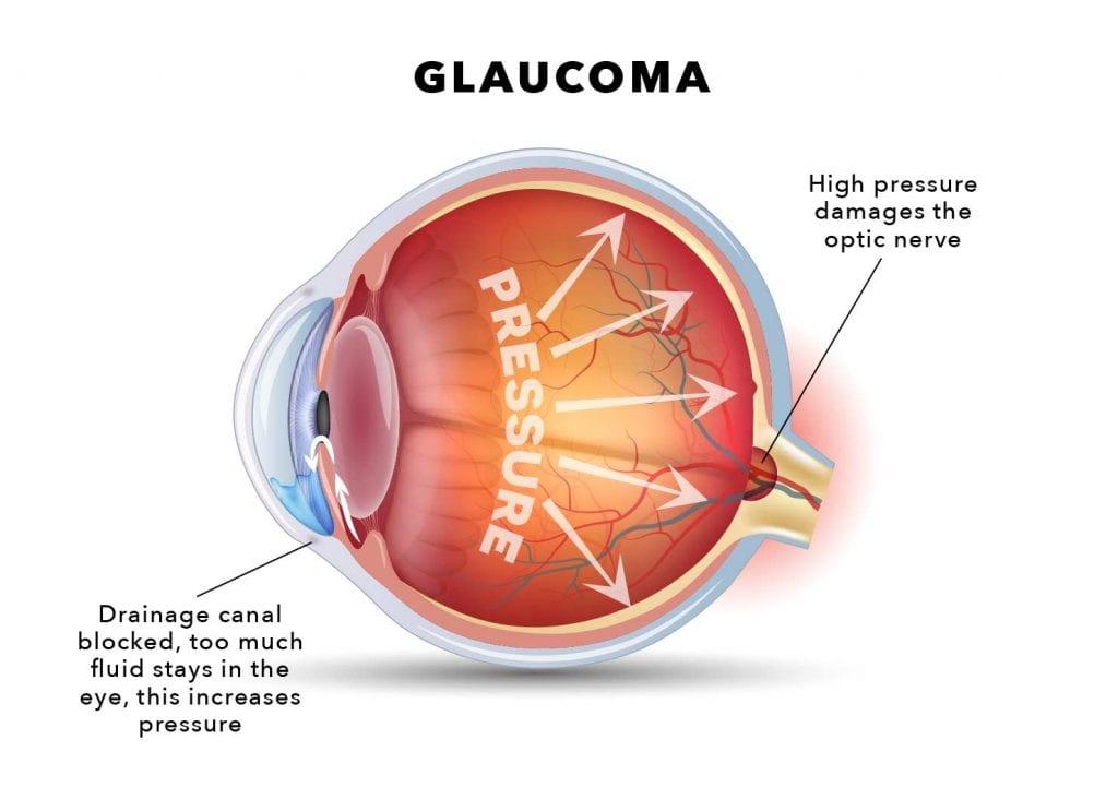 Glaucoma trabecular meshwork diagram