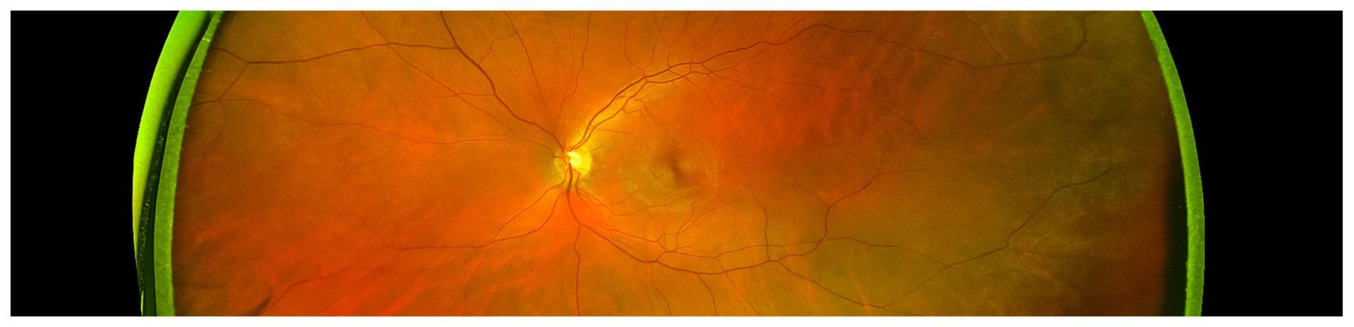 Retina_Eye-Exam