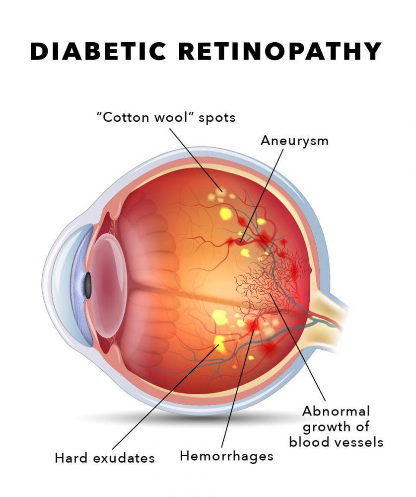 Retina-Diagram