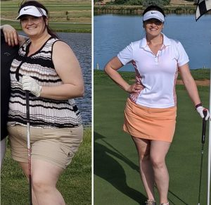 Angel Matten, before and after weight loss surgery