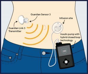 Diagram of a new insulin pump system