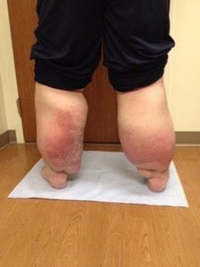 Lymphedema caused enormous swelling in Raymond Stone's legs.
