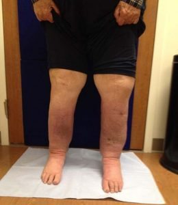 After intensive treatment with Vicki Ralph, the swelling in Stone's legs subsided significantly.