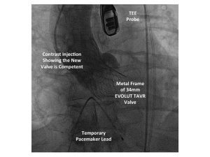 This is an x-ray image from the first patient treated in the low-risk TAVR trial at UCHealth University of Colorado Hospital.