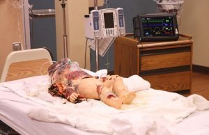 This is a photo of a child-age, high-fidelity simulator. The simulators are used have realistic abilities. Burned clothing and theater makeup help portray a realistic situation that the nurse may encounter.