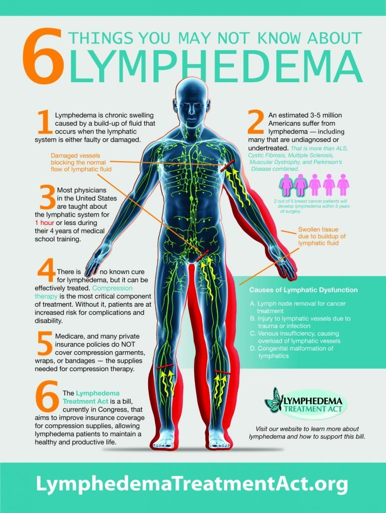 This infographic shares six things you may not know about lymphedema.