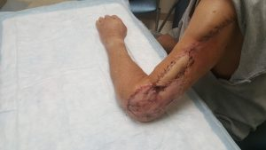 a picture of Michael Klement''s reconstructed left arm after the May 5 procedure