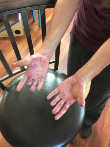 Strong''s hands, shown here, after care from the Burn Center and reconstructive surgery