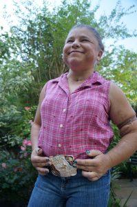 Sara Millard wears her championship belt buckle to a follow-up visit at UCHealth's University of Colorado Hospital.