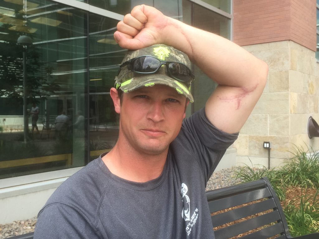 Daniel Bryce shows a healed scar on his left arm that he received from a chain saw injury.