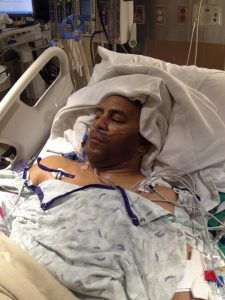 Jeff Bramstedt is shown right after surgery. Thousands of people each year need a live liver transplant.