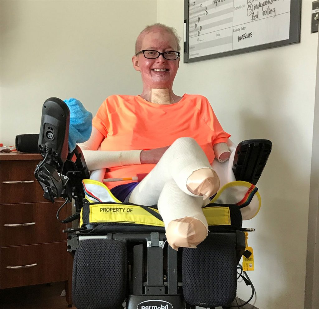A burn survivor who lost two legs and one arm poses in her wheel chair.