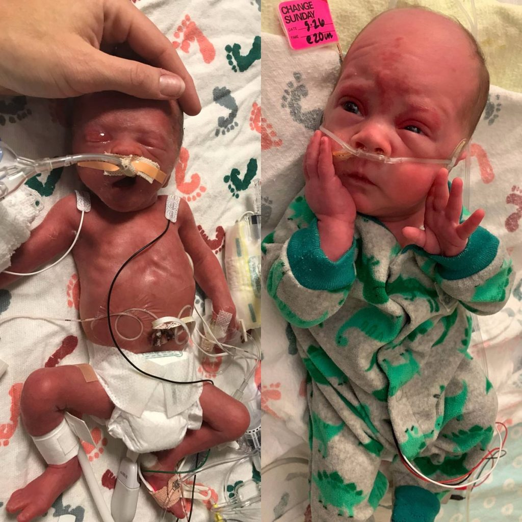 Side-by-side photos of Lincoln Grewar at birth and at about 5 pounds.