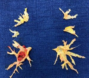 a pictuer of excised CTEPH blockages from a rare lung illness. The blockages look like bony birds