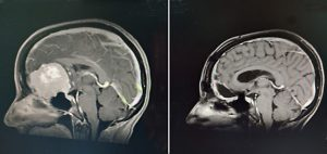 two MRIs, one which shows a large brain tumor and the other after surgery with the tumor gone but her brain hasn't filled in the space all the way yet.