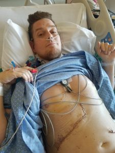 This is a photo of George Gess one day after his liver transplant.