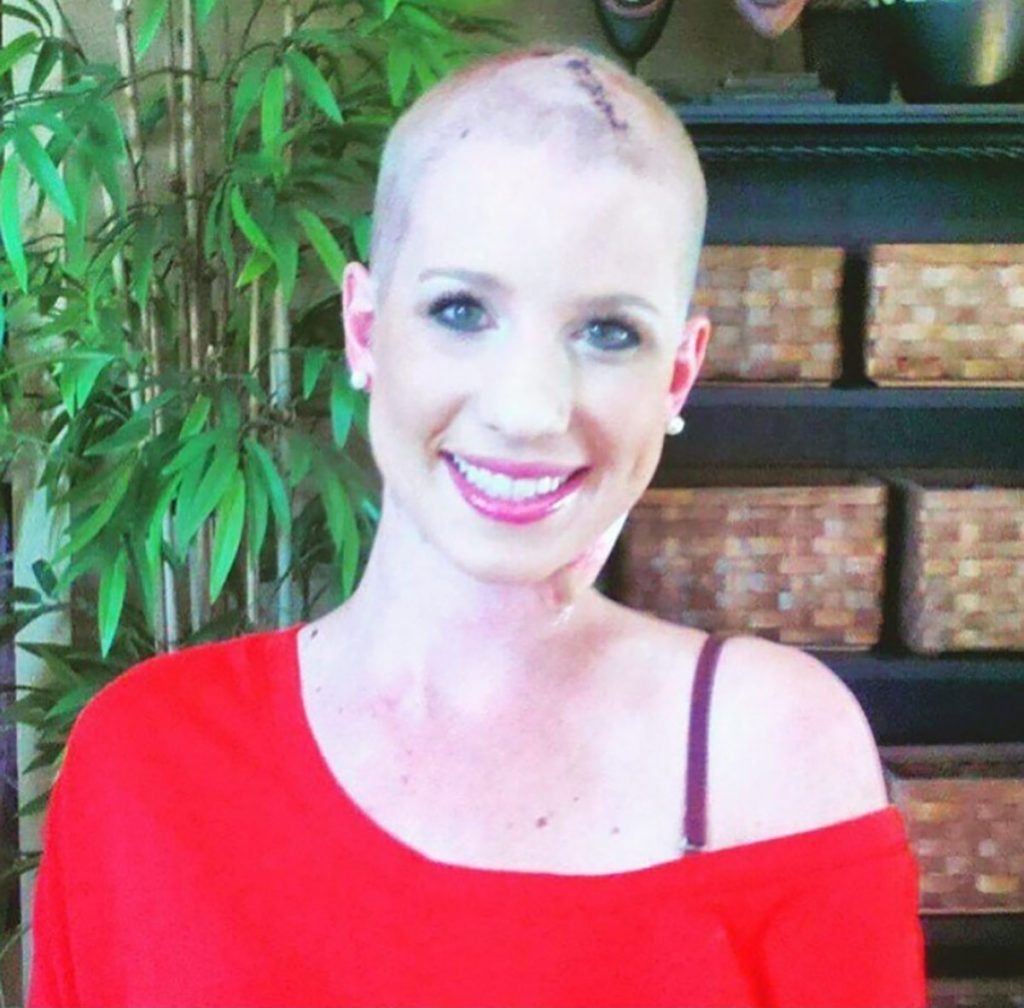 Even with her head shaven and big scar on the top of her head, Lauren has smiled as she has coped with metastatic melanoma.
