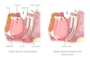 diagram of sleep apnea's complex anatomy.