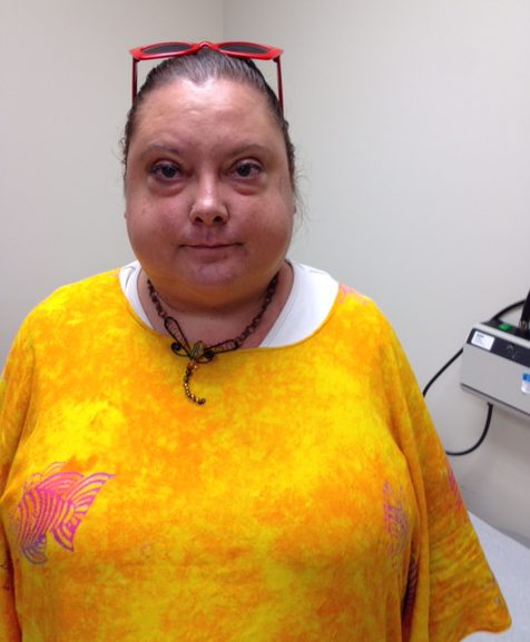 Linda Hidahl had gain 90 pounds before she received care for Cushing's disease.