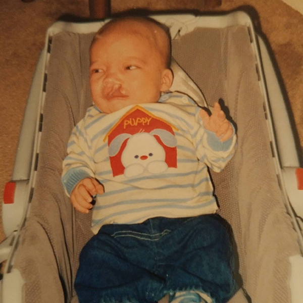 Matt Johnston as a baby. He was born with a cleft palate and a heart defect that later prompted him to take up running.