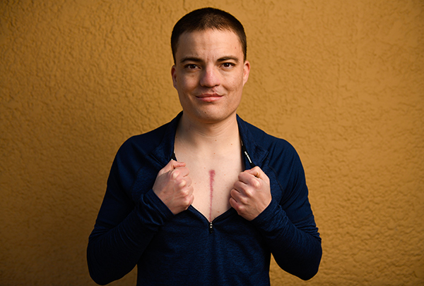 Matt Johnston, who was born with a heat defect, shows off a scar from heart valve surgery.