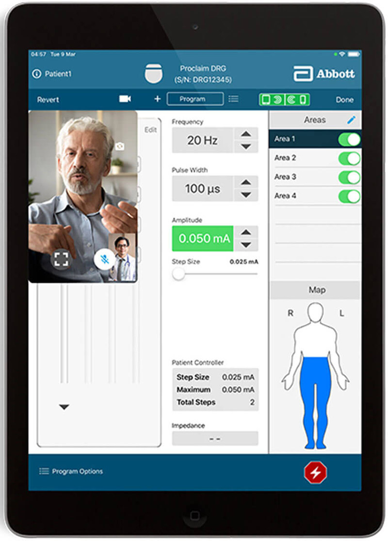 Abbott received FDA approval for its DBS telehealth and remote-adjustment technology in March. Here's the physician's perspective. Image courtesy of Abbott.